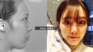 รีวิวศัลยกรรมเกาหลี โรงพยาบาลไอดี _ ศัลยกรรมตา จมูกและเสริมคาง อันโซยอง