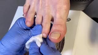 Педикюр на клиенте мятный педикюр Аппаратный педикюр