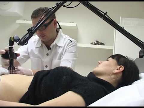 Фракционный термолиз 3 растяжки после беременности