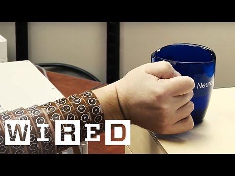 A Brain Implant Brings a Quadriplegic's Arm Back to Life | WIRED