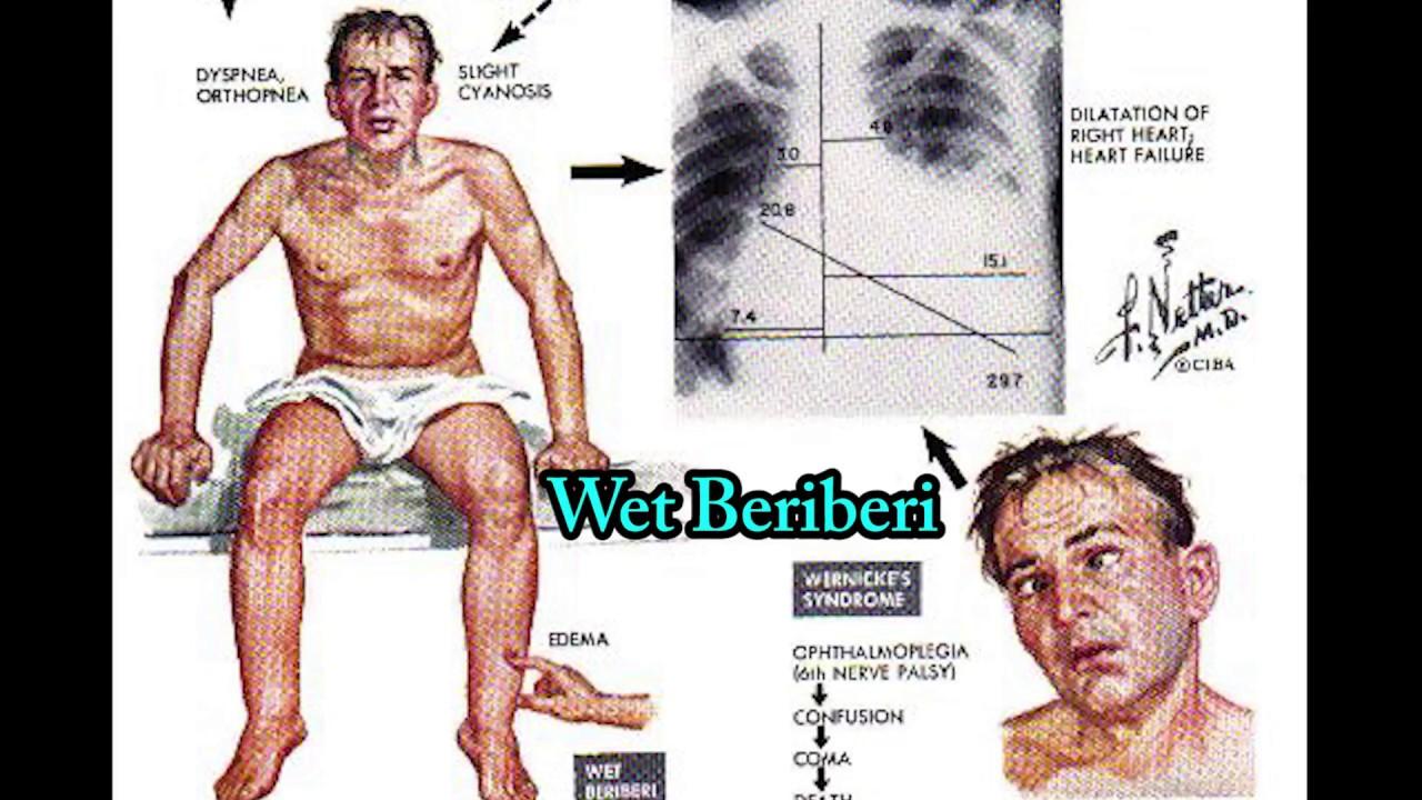 Thiamine Deficiency, Beriberi. Dry Beriberi VS Wet Beriberi - YouTube