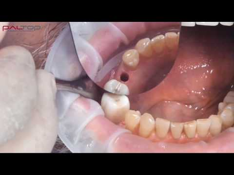 PALTOP Flapless Guided Implant Surgery Using PAI - Dr. Michael Klein