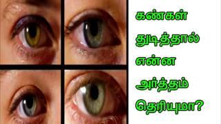 Eyes Blew reason and remedy  கண்கள்  துடித்தால் என்ன அர்த்தம் என்று தெரியுமா?