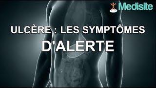 Ulcère : les symptômes d'alerte