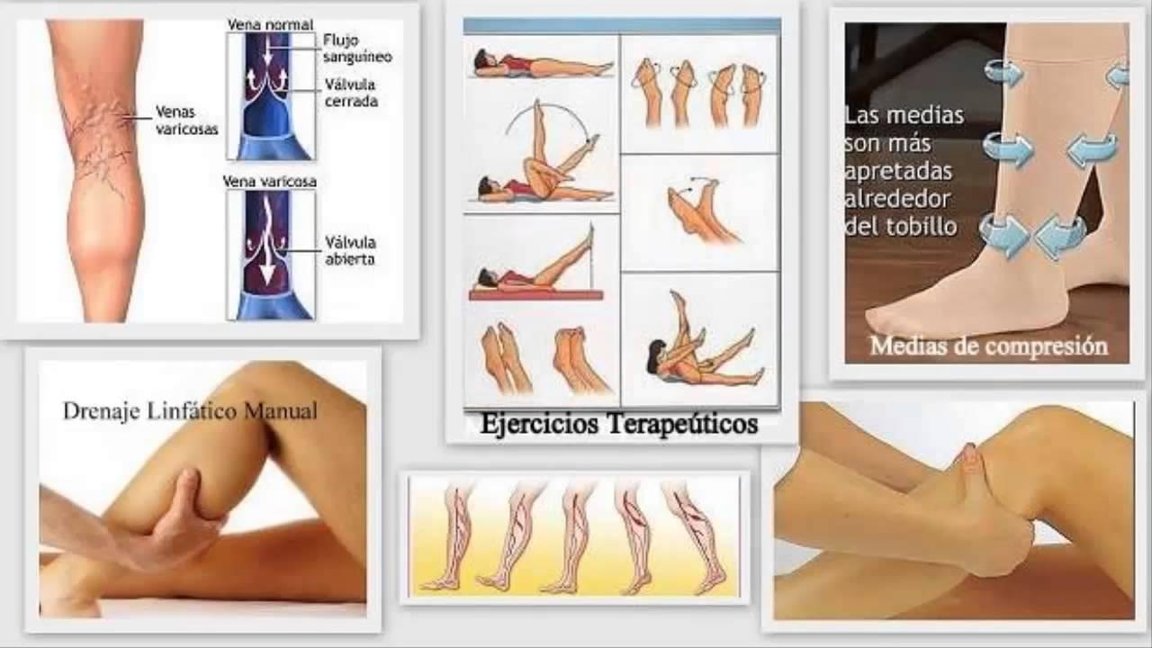 varices internas en las piernas