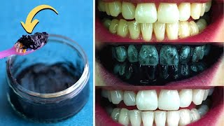 Magical Teeth Whitening With Coconut Oil and Activated Charcoal In 2 Minutes