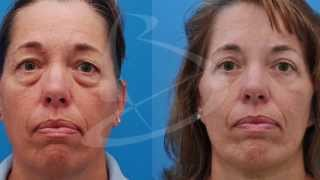 Eyelid Surgery After And Intro