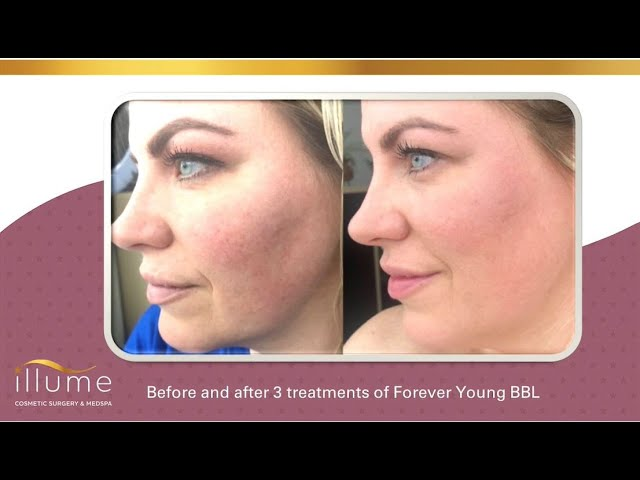 Illume Laser Skin Rejuvenation BBL, CO2 & Halo