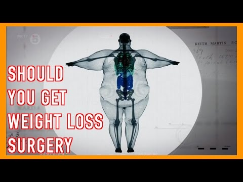 Diet plan for colostomy patients