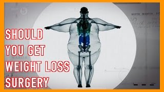 Should You Get Weight Loss Surgery