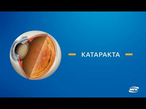 Катаракта - симптомы, лечение, профилактика, причины