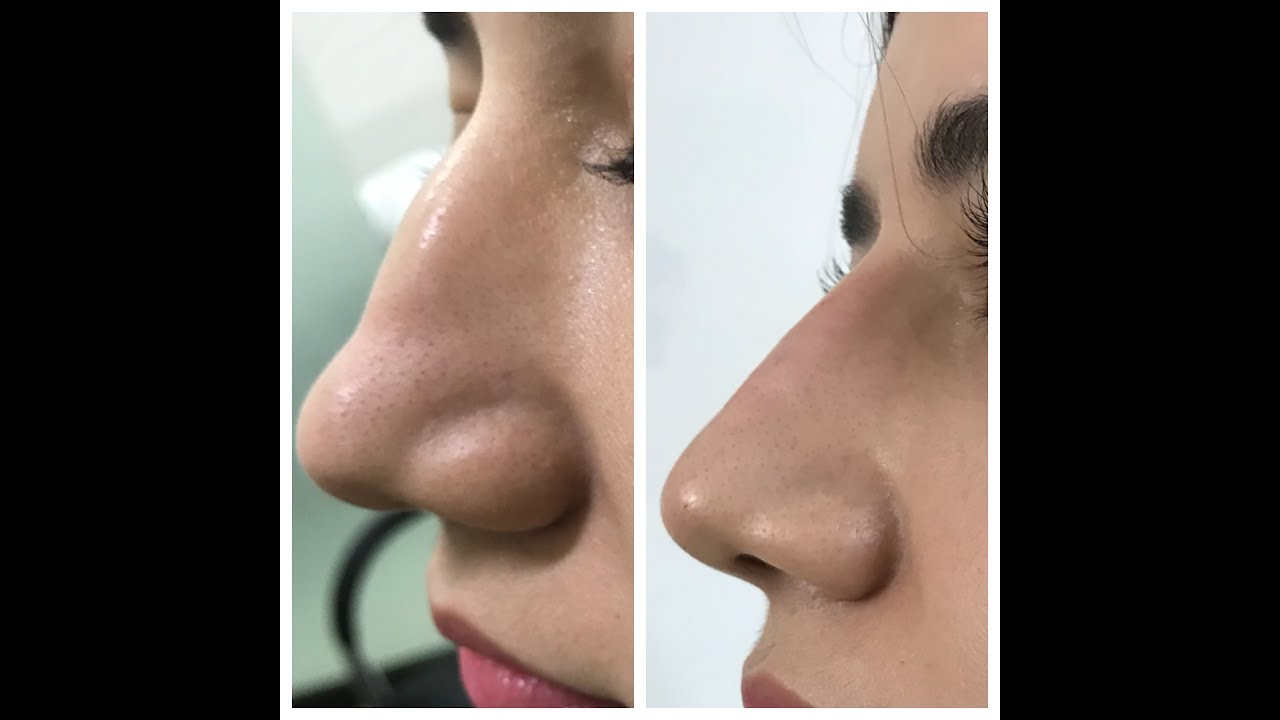 Non Surgical Rhinoplasty In Lahore Pakistan By Dr Saleem Best Plastic Surgeon At Low Cost Youtube