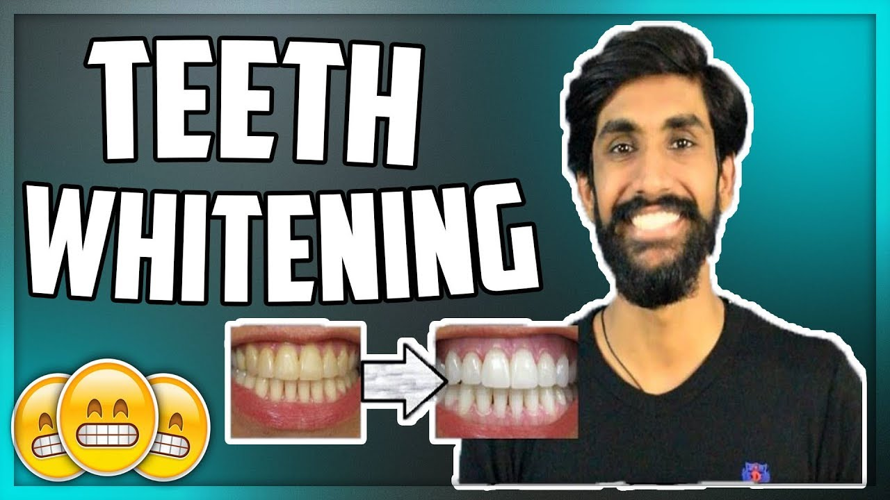 How To Remove Yellow Teeth At Home In Hindi Teethwalls