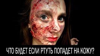 Что будет, если ртуть попадет на кожу