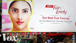 Download Why the market for skin whitening is growing Mp3 and Videos