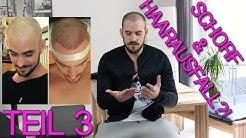 FUE Haartransplantation – Schorf fast verheilt - 4 Wochen später