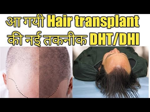 hair-transplant-cost-in-india-||-latest-hair-transplant-technique-||