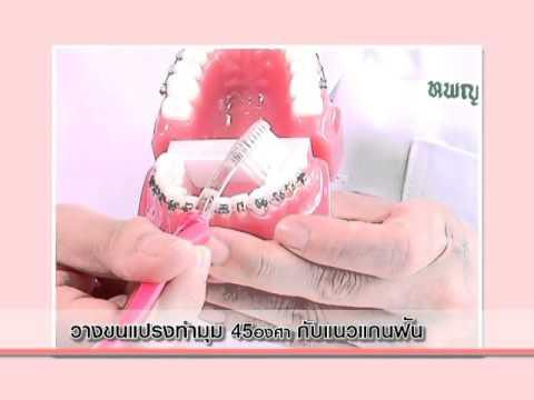 เกร็ดความรู้ ชุดยิ้มสวยทุกองศา ตอน การดูแลสุขภาพฟันของผู้จัดฟัน