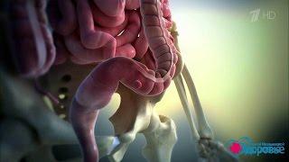Здоровье. Дивертикулез кишечника. (26.03.2017)