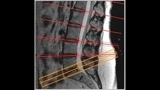 L spine MRI positioning