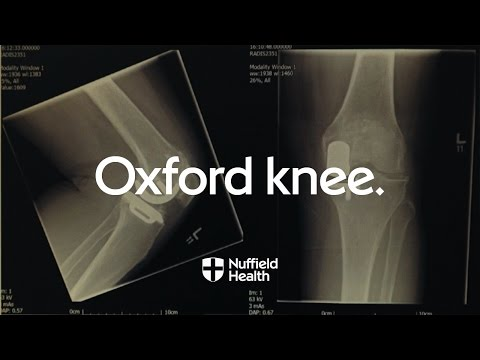 Innovation in Motion - 40 Years of the Oxford Knee | Nuffield Health