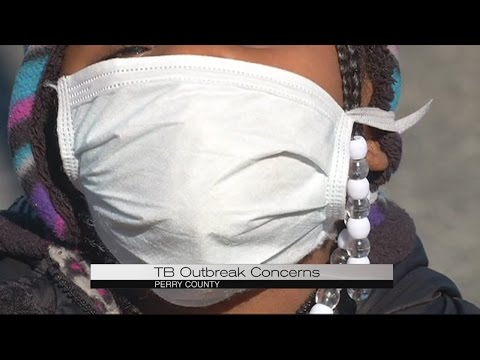 TB Outbreak Concerns