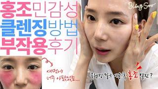 홍조 민감성 피부 클렌징 방법 & 클렌징 밀크 …