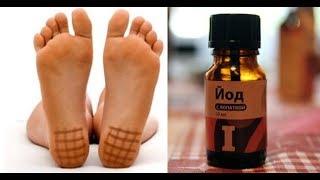 ★Нарисуй ЙОДОМ решетку, улучшишь кровообращение, избавишься от отека ног. Тест на уровень йода