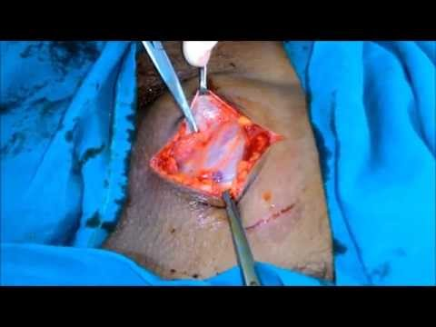 Demonstration of Ilioinguinal nerve in inguinal canal