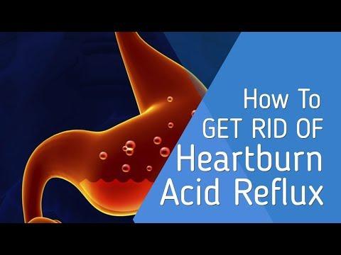 ✅ Essential Oil For Heartburn Doterra – What To Take For Heartburn