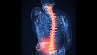 Боль в спине лечение в домашних условиях.