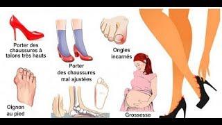 10 Causes des douleurs aux pieds et comment y remédier