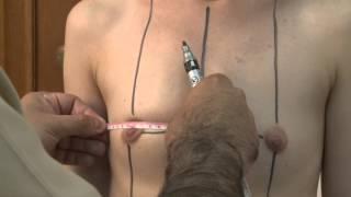 Пластическая операция по увеличению груди в Дельта Клиник(http://www.deltaclinic.ru/plastika_grudi/?sphrase_id=6972&utm_source=youtube&utm_medium=organic&utm_campaign=uvelichit-grud -- Полный ход ..., 2016-02-12T10:46:05.000Z)