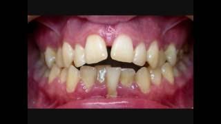 видео Отбеливание зубов после ортодонтического лечения