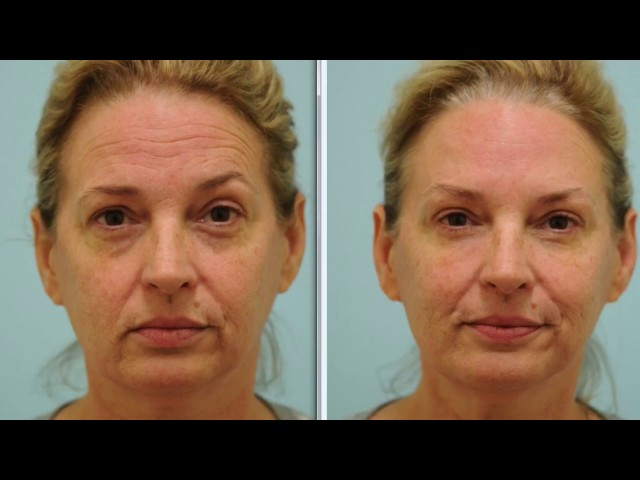 Botox and Fillers First Time Testimonial