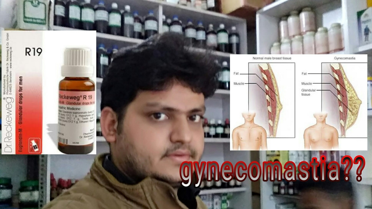 Homeopathic Medicine For Gynecomastia Explain