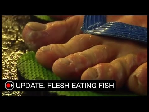 Fish eat dead skin off spa goers feet funnydog tv for Fish that eat dead skin