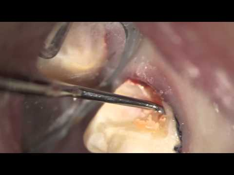 Diagnosing MASSIVE Decay under filling on back molar extremely difficult