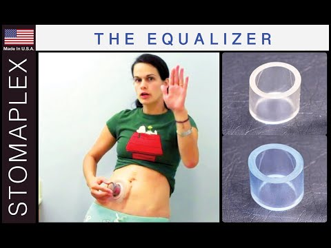 Stomaplex Ostomy Care Video Prevent Leaks With The Equalizer