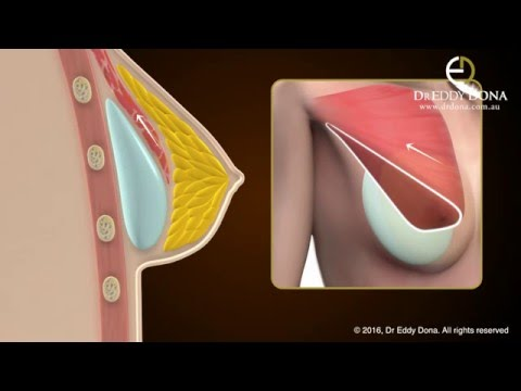 Dr Eddy Dona - IMPLANT POCKETS - The different implant pockets explanation