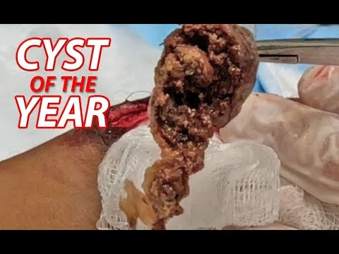 Meatball Surgery!  Dr. Gilmore's Largest Arm Cyst!