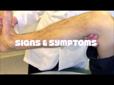 Cibo e trattamento di thrombophlebitis delle estremità più basse