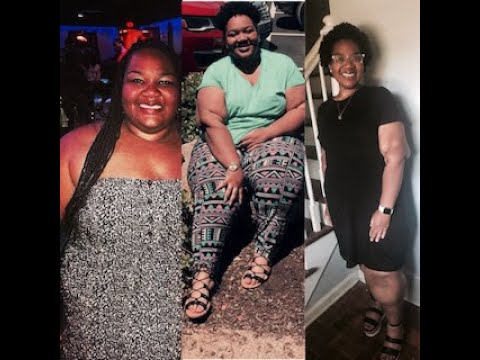 my-weight-loss-journey:-how-i-lost-250lbs