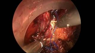 Sequential Laparoscopic TaTME: Successful Removal of 3 cm Rectal Mass