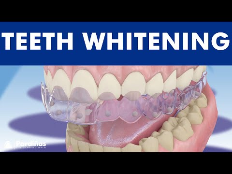 Teeth Whitening ©