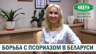 Как в Беларуси борются с псориазом