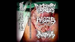 Pulmonary Fibrosis / Haggus / Inopexia - 3-way split CS FULL ALBUM (2017 - Goregrind / Mincecore)