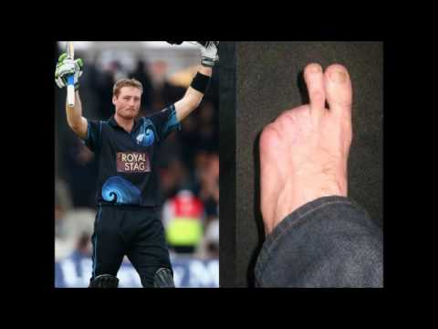 Martin Guptill - An inspiring cricketer with only two left toe fingers