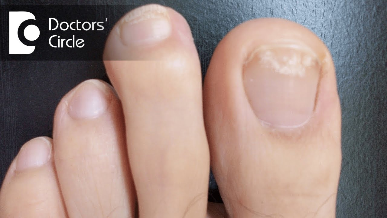 What causes white spots on toenails? - Dr. Aruna Prasad - YouTube
