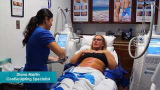 CoolSculpting Treatment Testimonial (Timelapse)